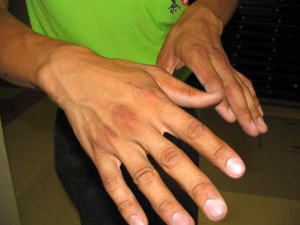 働き者の奇麗な手